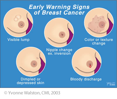 lump or thickening in or near the breast or in the underarm that